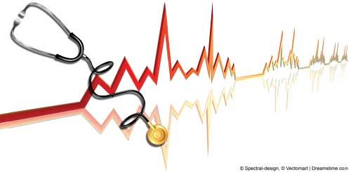 image of EKG line